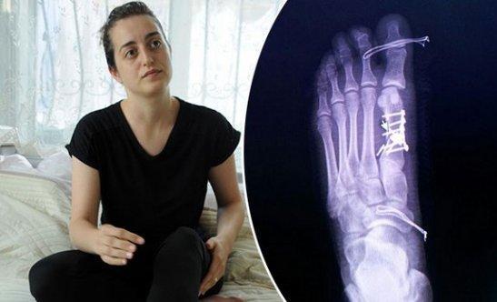 Sağlam parmağa operasyon yapan doktora dava açıldı